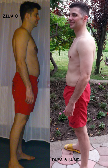before-after-profile